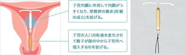 土崎レディースクリニック - 秋田市 内科・産婦人科の病院ミレーナについてINFORMATION
